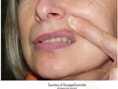 verruca sul labbro superiore
